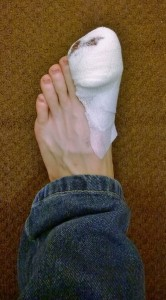 Poorly toe.